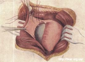 Артроз височно-нижнечелюстного сустава последствия